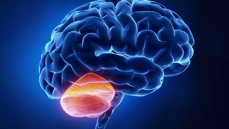 stroke i lillhjärnan